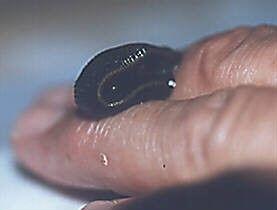 Blutegel an Finger